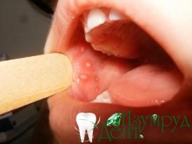 фото заболевания слизистой оболочки полости рта