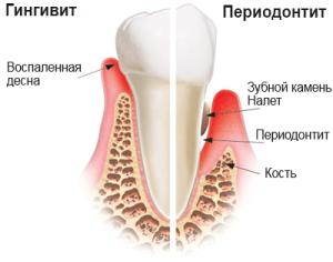 periodontit_foto1