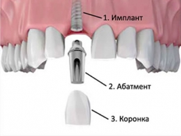 images-stories-aregak2-Aregak3-implant-260x196