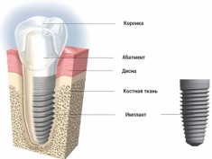 images-stories-aregak2-Aregak3-implant_info-235x177