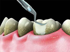 Udalenie-zubnogo-kamnya